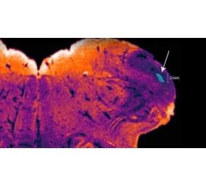Нейробиологи обнаружили ранее скрытый участок в человеческом мозге