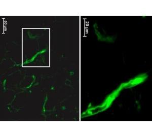 Стволовые клетки могут мигрировать из места тканевой инъекции