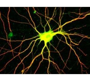 Определены нейроны, вызывающие неприятные эмоции от боли
